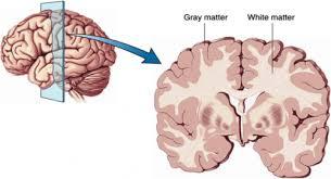 I-Yogaa Brain Grey and White Matter